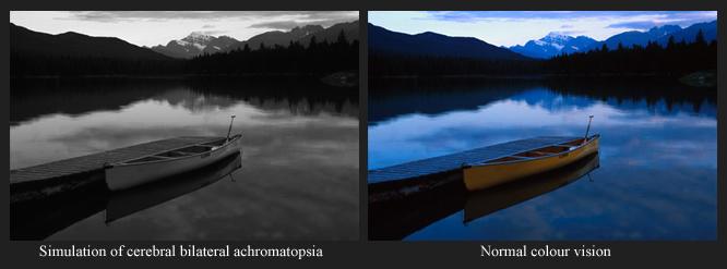 Cerebral Achromatopsia Amp Color Vision